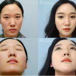 Korean Girl Nose Surgery
