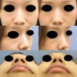 Korean Nose Augmentation Photos Before And After (3)