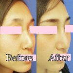 Korean Nose Job Before And After Pictures (1)