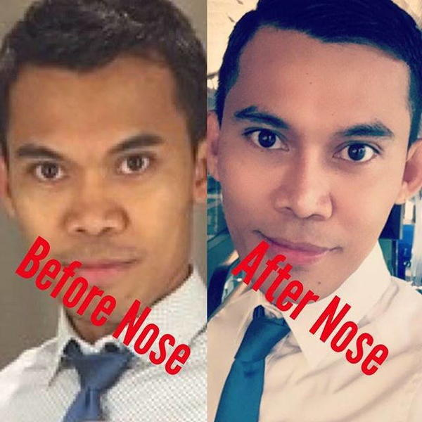 korean nose job for man before after 187 rhinoplasty cost