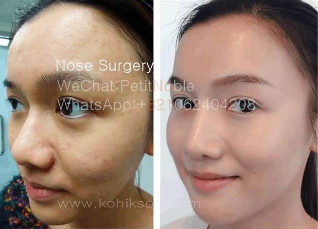 korean nose job procedure 187 rhinoplasty cost pics