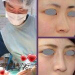 Korean Nose Surgery Images (3)