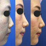 Korean Rhinoplasty Before And After Photos (1)