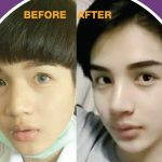 Korean Rhinoplasty Before And After Photos (6)