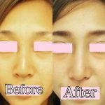 Korean Rhinoplasty Before And After Pictures (2)