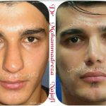 Male Bulbous Nose Before And After Nose Surgery