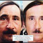 Male Bulbous Nose Treatment