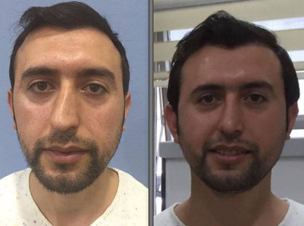 Rhinoplasty Before and After Los Angeles | Beverly Hills ...