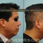 Male Korean Rhinoplasty Before And After Pictures (2)