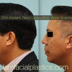 Male Korean Rhinoplasty Before And After Pictures (3)