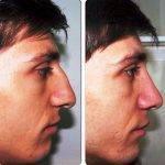 Male Nasal Reconstruction Surgery In Mumbai