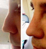 Maryland Male Nose Job Before And After Photo