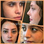 N Most Persian (Iranian) Rhinoplasty Patients, The Skin Thickness Is A Very Important Consideration