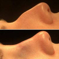 Nasal Hump Removal Can Be Performed Under General Or Local Anesthesia