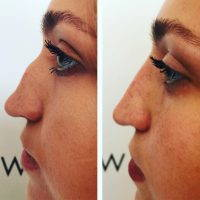 Nasal Hump Removal Dorsal Hump Excision Can Be Accomplished Through A Closed Or Open Rhinoplasty Technique
