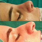 Nasal hump deformity before and after (3)
