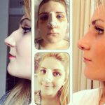 Nasal hump removal is one of the most common conditions treated during rhinoplasty