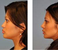 Newcastle Asian Rhinoplasty Before And After Photos