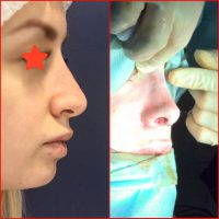 Newcastle Rhinoplasty Before And After Photos