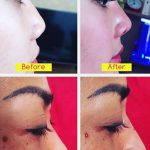 Non Surgical Nose Augmentation Photos