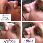 Nose Augmentation Before And After (1)