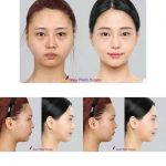 Nose Augmentation Before And After Images (2)