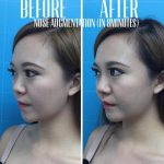 Nose Augmentation Filler Before And After