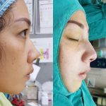 Nose Augmentation Injection Before And After