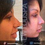 Nose Augmentation Rhinoplasty Before And After (4)