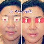 Nose Augmentation Without Surgery Before And After (1)