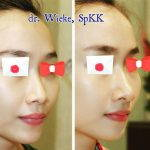 Nose Augmentation Without Surgery Before And After (2)