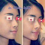 Nose Augmentation Without Surgery Before And After (3)