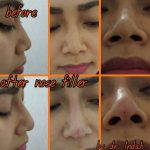 Nose Bridge Augmentation Before And After