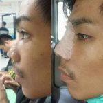 Nose Bridge Augmentation For Man (2)