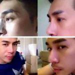 Nose Bridge Augmentation For Man (4)