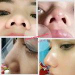 Nose Bridge Augmentation Non Invasive