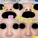 Nose Bridge Augmentation Preop And Postop (6)