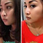 Nose Bridge Augmentation Surgery Before After