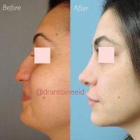 Nose Bridge Augmentation To Raise Your Tip