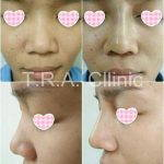 Nose Job Augmentation To Camouflage Deviations
