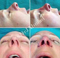 Nose Looks Crooked After Rhinoplasty » Rhinoplasty: Cost, Pics