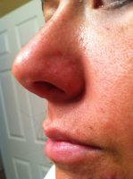 Nose Reshaping At The Harley Medical Group