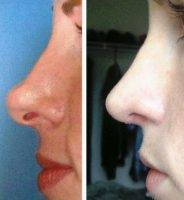 Nose Surgery NC Preop And Postop Results