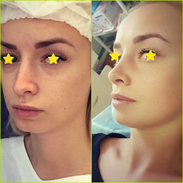 Nose Surgery Pre Op And Post Op Photos In Newcastle At Biddlestone Health Group Rhinoplasty Cost Pics Reviews Q A
