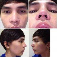 Nose Surgery in Mexico can be performed alone or be associated with other complementary interventions face
