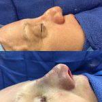 Nose Tip Augmentation (1)