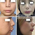 Nose Tip Augmentation (2)