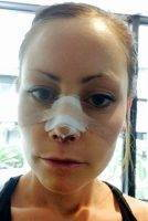Nostril Plastic Surgery In Rochester MN May Be Used To Reconstruct The Nose For Medical Reasons