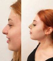 Nostril Surgery In Minnesota At Prischmann Facial Plastic Surgery