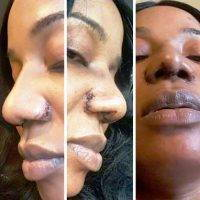 Perfect Nose For African American In Raleigh, NC Photos